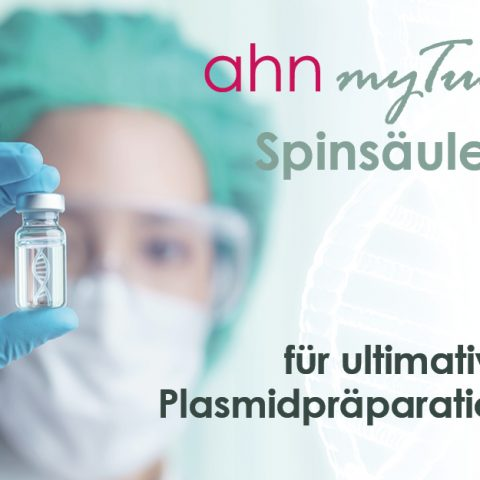 Plasmidpräparation, Plasmid DNA Reinigung